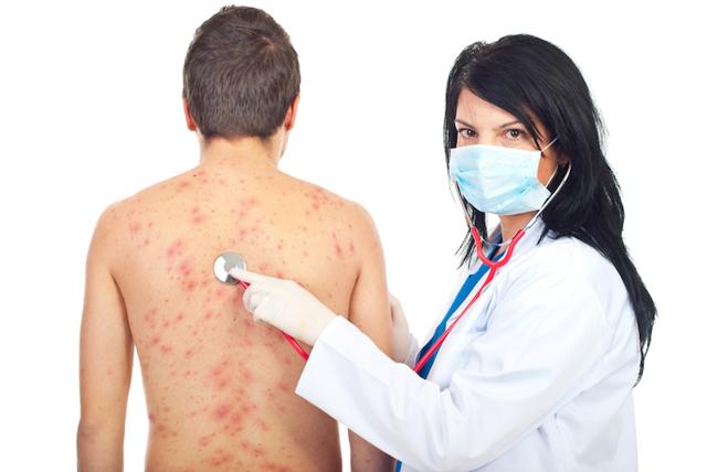 Берут ли в армию с дерматитом: отсрочка и освобождение от армии.
